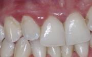 Jak obnovit dásně
